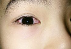 Roze oog Stock Foto's