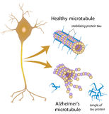 Rozpada się microtubules w Alzheimer chorobie ilustracja wektor