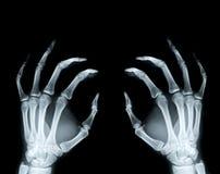 Rphotograph dei raggi x della mano Immagini Stock