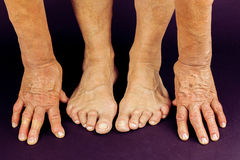 Rrheumatoid arthritis hand and toe deformities Stock Photos
