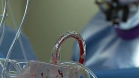 Ruggegraatschirurgiebloed (4 van 6) stock footage