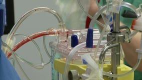 Ruggegraatschirurgiebloed 6 van 6 stock video
