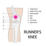 Runners knee. Vector illustration of knee injury with description Royalty Free Stock Photo