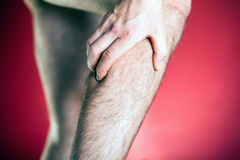 Running man physical injury, leg pain Stock Photography