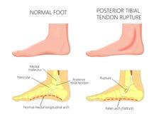 Ruptura tibial del tendón del injury_Posterior intermedio del tobillo libre illustration