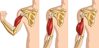 Rupture de tendon de biceps Photos stock
