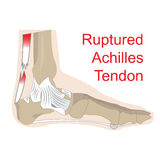 Ruptured achilles tendon. Vector illustration of achilles tendon rupture. image of foot anatomy with all tendons and bones Stock Photography