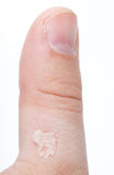 Ruptured blister on thumb Stock Photography