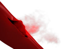 Ruptured Vein - Torn Artery Royalty Free Stock Image
