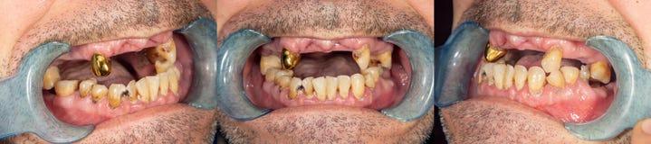 Ruttna tänder, karies och plattanärbild i asocially dåligt en patient r fotografering för bildbyråer