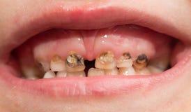 Ruttna tänder Makro arkivbild