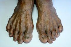 Ruwe voet stock afbeeldingen