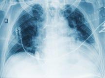 Ry wizerunek pacjent z zapaleniem płuc Obrazy Royalty Free
