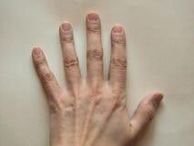 rygg- sikt av handen Fotografering för Bildbyråer