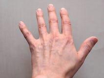 rygg- sikt av handen Arkivbild
