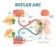 Ryggrads- anatomisk intrig för reflexbåge, vektorillustration, med stimulans, den sensoriska neuronen, den motoriska neuronen och stock illustrationer