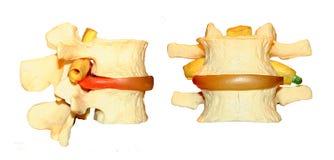 ryggrads- model nerv klämd Arkivfoton