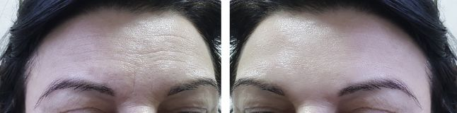 Rynkar den äldre kvinnapannan för framsidan före och efter den kosmetiska tillvägagångssättcollagenen arkivbild