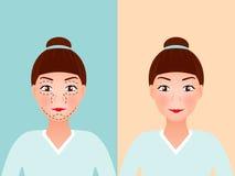 Rysunkowe dziurkowanie linie na młodym ładnym kobiety ` s stawiają czoło dla chirurgii plastycznej Przed i po procedurą wektor Fotografia Royalty Free