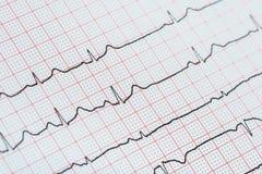 Rythme de coeur de sinus sur le papier d'enregistrement d'électrocardiogramme montrant le coeur normal Image stock