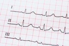 Rythme de coeur de sinus sur le papier d'enregistrement d'électrocardiogramme montrant le coeur normal Photo stock