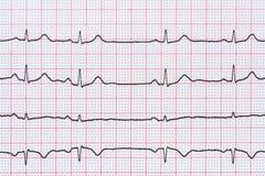 Rythme de coeur de sinus sur le papier d'enregistrement d'électrocardiogramme montrant le coeur normal Images libres de droits