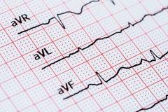 Rythme de coeur de sinus sur le papier d'enregistrement d'électrocardiogramme montrant le coeur normal Photos libres de droits
