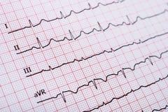 Rythme de coeur de sinus sur le papier d'enregistrement d'électrocardiogramme montrant le coeur normal Image libre de droits