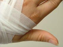 sårad hand Arkivfoto