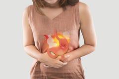 Síntomas ácidos o ardor de estómago de la enfermedad del reflujo foto de archivo