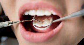 少妇宏观射击有牙齿检查在牙齿诊所 牙医有牙齿工具的审查的患者` s牙