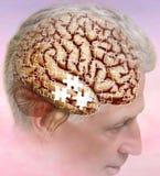 ` S di Alzheimer, la malattia del ` s di Alzheimer di dimenticanza e pensieri persi illustrazione vettoriale