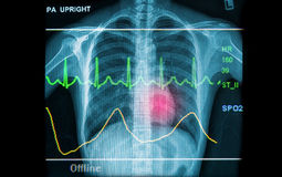 Saúde abstrata e fundos médicos Fotografia de Stock Royalty Free