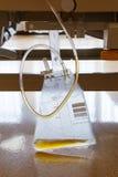 Sacchetto di raccolta dell'urina Fotografia Stock