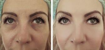 sacos do olho dos enrugamentos antes após o efeito dos procedimentos da diferença fotografia de stock royalty free