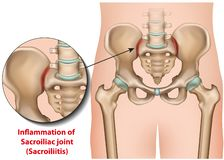 Sacroiliac gemeinsames medizinisches sacroiliitis Illustration der Entzündung 3d lizenzfreie abbildung