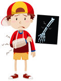 Sad boy with broken arm. Illustration stock illustration