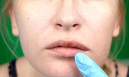 Herpes on the lips, part of a woman`s face with finger on lips with herpes, beauty concept stock image