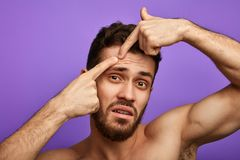 Sad unhappy man has found a pimple on his face stock photo