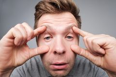 Sad young man suffers from insomnia. He is trying to open his eyes with fingers. royalty free stock images