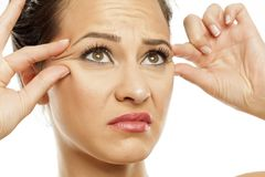 Skin care - wrinkles. Sad young woman checking the wrinkles around her eyes with her fingers stock photography