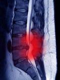 Saillie lombaire de disque, M. image, symbole de douleur sciatique photographie stock