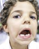 Saknad tand för barn Royaltyfria Bilder