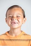 Saknade tänder för pojkevisning royaltyfri foto