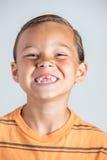 Saknade tänder för pojkevisning royaltyfri bild