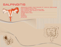 Salpingitis background Stock Images