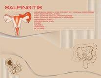 Salpingitis background Stock Images