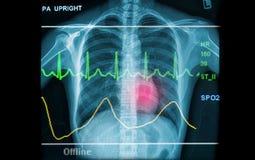 Salud abstracta y fondos médicos Fotografía de archivo libre de regalías