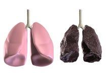 Salud y malos lungss Imagen de archivo