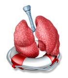 Salvataggio dei polmoni Fotografie Stock Libere da Diritti